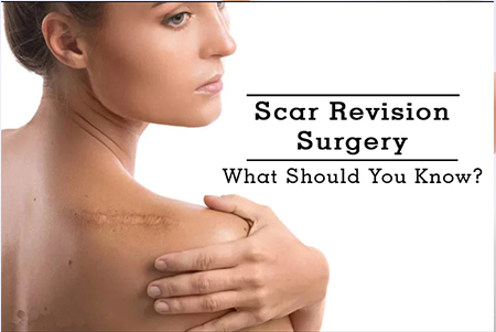 Scar Revision Surgery